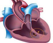 سوراخ-قلب-نوزاد