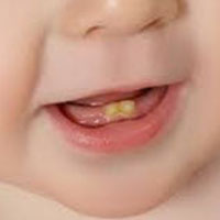سیاه شدن دندان نوزاد